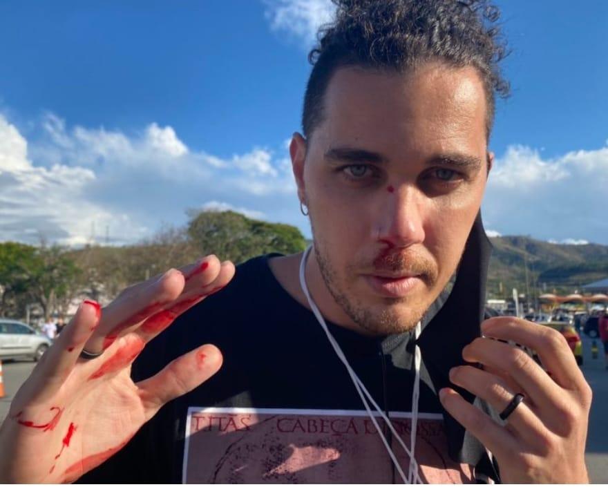 Repórter cinematográfico Leandro Matozo é agredido por apoiador do  presidente Jair Bolsonaro - FENAJ